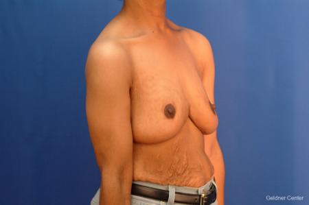 Breast Reduction Hinsdale 2440 -  After Image 3