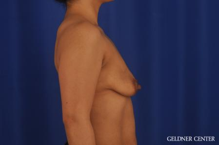 Breast Lift: Patient 55 - Before Image 3