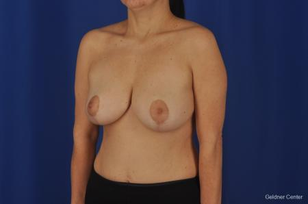 Chicago Breast Reduction 2068 - Before and After Image 3