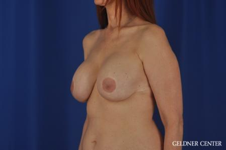 Complex Breast Augmentation: Patient 37 - Before and After Image 4