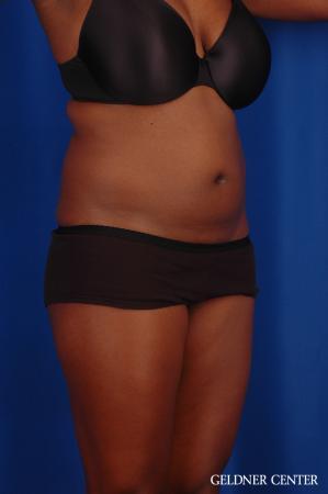 Liposuction: Patient 42 - Before Image 2
