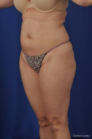 Vaser lipo patient 2069 before and after photos - Before and After Image 4