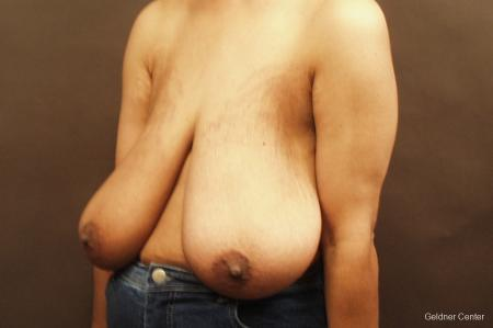 Breast Reduction Hinsdale 2440 - Before and After Image 4