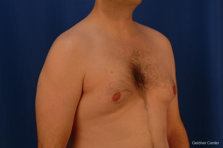 Gynecomastia: Patient 4 - Before Image 3