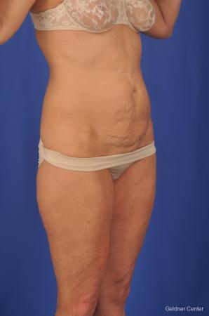 Lipoabdominoplasty: Patient 2 - Before Image 2