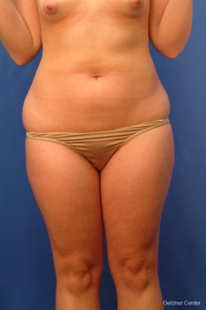 Liposuction: Patient 13 - Before Image 1