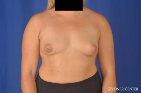 Breast Augmentation: Patient 179 - Before Image 1