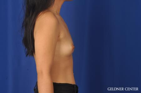 Breast Augmentation: Patient 146 - Before Image 2