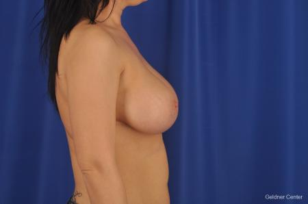 Chicago Complex Breast Augmentation 2288 -  After Image 2