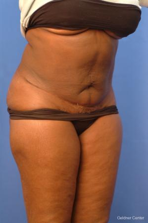 Vaser lipo patient 2540 before and after photos -  After Image 3