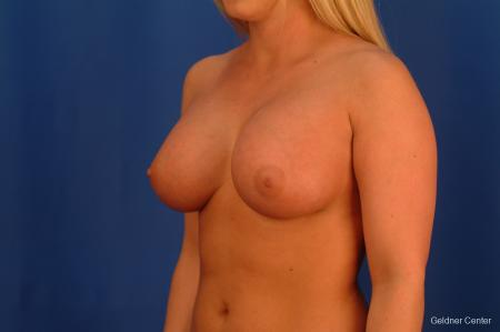 Chicago Breast Augmentation 2443 -  After Image 4