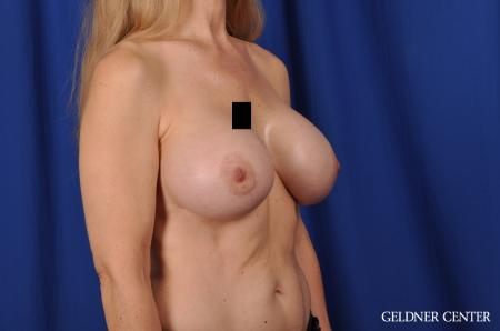 Chicago Breast Augmentation 5467 -  After Image 2