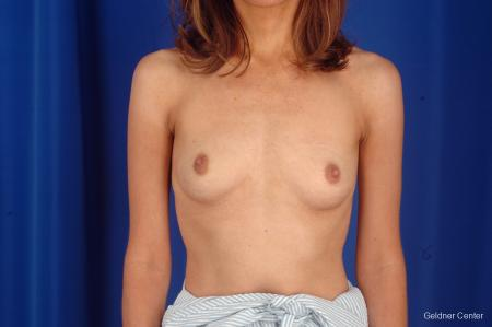 Breast Lift Chicago 2296 - Before Image 1