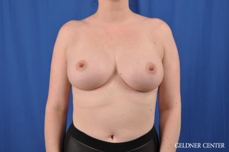 Breast Augmentation: Patient 135 - After 1