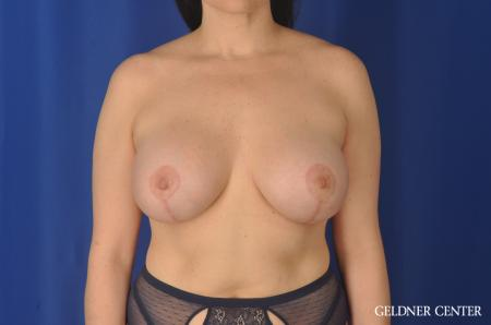 Chicago Breast Lift 11857 -  After Image 1