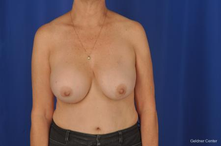 Breast Lift Hinsdale, Chicago 2058 - Before Image 1