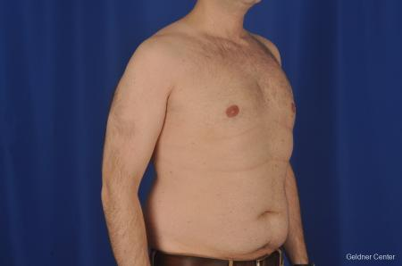Gynecomastia: Patient 1 - After Image 3