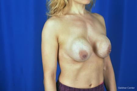Chicago Breast Lift 2072 - Before Image 3