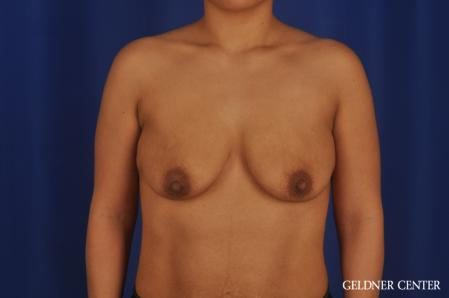 Breast Lift: Patient 55 - Before Image 1