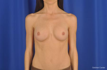 Breast Augmentation Hinsdale, Chicago 2311 -  After Image 1