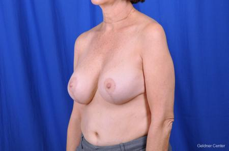 Breast Augmentation Lake Shore Dr, Chicago 2057 -  After Image 4
