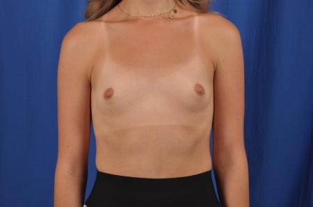 Breast Augmentation: Patient 82 - Before Image 1