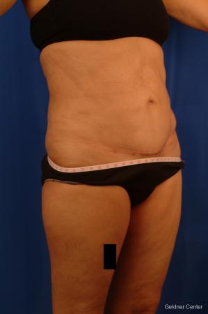 Vaser lipo patient 2536 before and after photos -  After Image 3