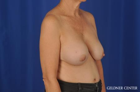 Chicago Breast Augmentation 4285 - Before Image 2