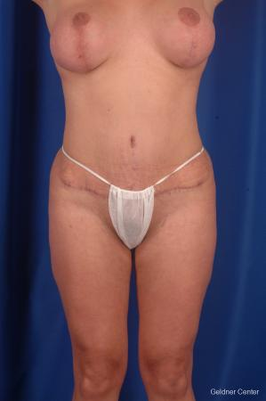 Tummy Tuck: Patient 3 - After Image 1