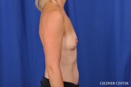 Breast Augmentation: Patient 186 - Before Image 3