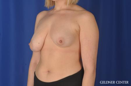 Breast Augmentation: Patient 147 - Before and After Image 4