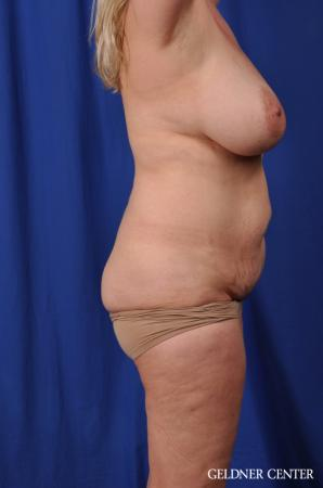 Lipoabdominoplasty: Patient 6 - Before Image 3