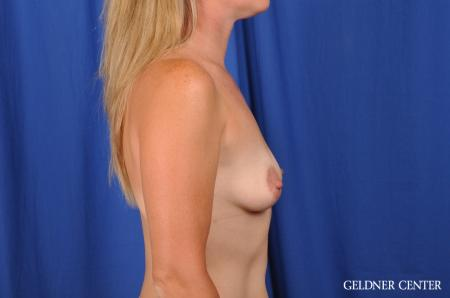 Breast Augmentation Hinsdale, Chicago 5580 - Before Image 3
