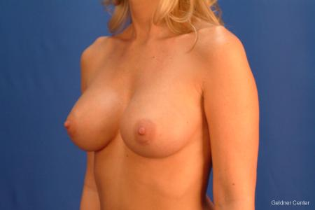 Breast Augmentation Streeterville, Chicago 2425 -  After Image 4