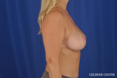 Breast Lift Streeterville, Chicago 8754 -  After 2