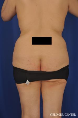 Tummy Tuck: Patient 24 - Before 4