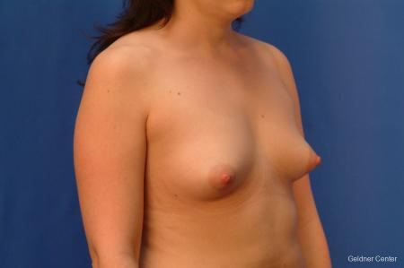 Chicago Breast Augmentation 2517 - Before Image 3