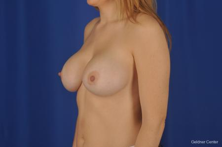 Chicago Breast Augmentation 2374 -  After Image 4