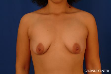 Breast Augmentation: Patient 160 - Before Image 1