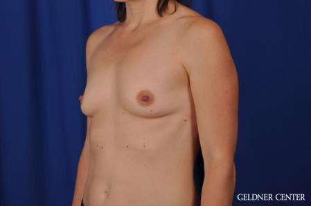 Breast Augmentation: Patient 170 - Before and After Image 4