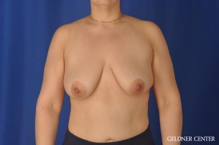 Complex Breast Augmentation: Patient 32 - Before Image 1