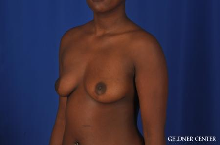 Breast Augmentation Hinsdale, Chicago 4001 - Before Image 4