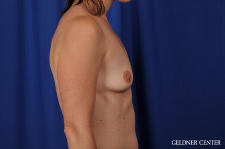 Breast Augmentation: Patient 170 - Before Image 3