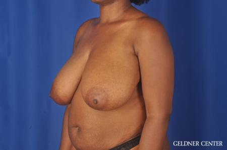 Breast Reduction: Patient 24 - Before and After Image 4