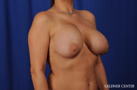 Chicago Breast Lift 5543 - Before Image 2