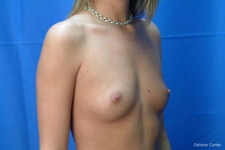 Chicago Breast Augmentation 2431 - Before Image 3