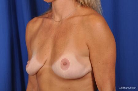 Complex Breast Augmentation Streeterville, Chicago 2392 - Before and After Image 4