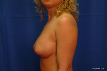 Breast Augmentation Lake Shore Dr, Chicago 2436 -  After Image 4
