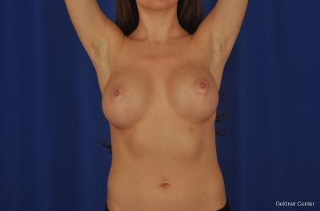Breast Augmentation Hinsdale, Chicago 2373 - Before and After Image 5