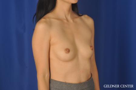 Breast Augmentation: Patient 176 - Before Image 2
